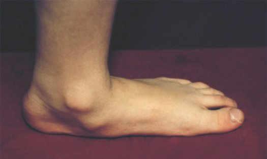 деформация стопы при плоскостопии