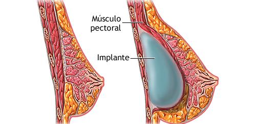 Увеличение груди имплантатом